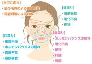 ニキビ部位別病気